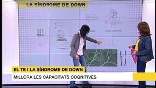 Càpsules eficaces per a la síndrome de Down