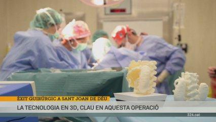 Sant Joan de Deu operacio 3D