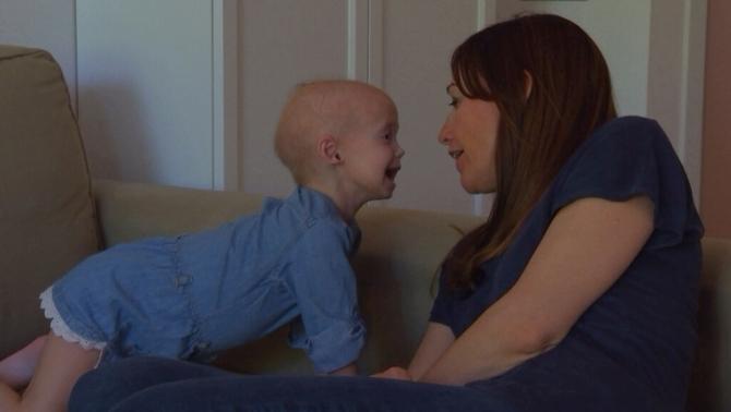 Alexandra, una nena amb la forma de progèria més greu, única entre 20 milions