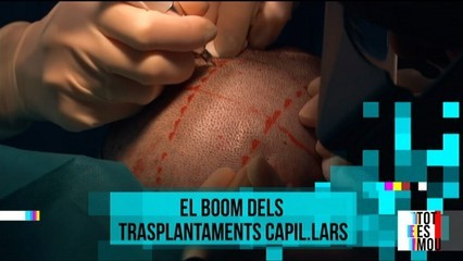 El boom dels trasplantaments capil·lars